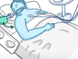 Clinical Skills: High-frequency oscillatory ventilation (HFOV)