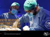 (CH) Preventive measures for anastomotic leak in colorectal surgery
