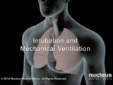 Intubation and Mechanical Ventilation Videotutorial