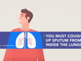 Sputum (patient) | How to collect a sample for COVID-19 testing